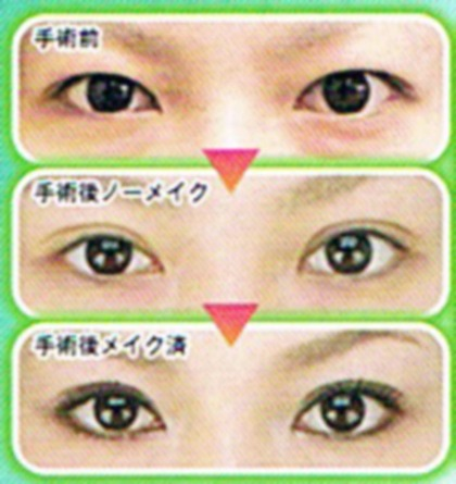 Japanese eyes don't naturally have a fold above the eyelid, so many girls use glue to get a double fold.